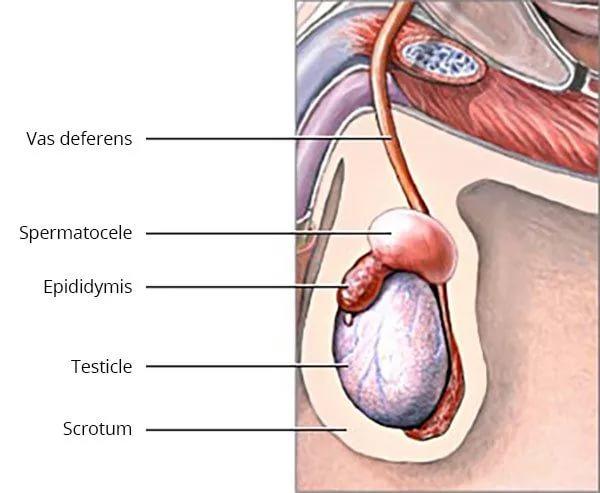 Опухоль мочевого пузыря у мужчин и женщин: симптомы, лечение и причины